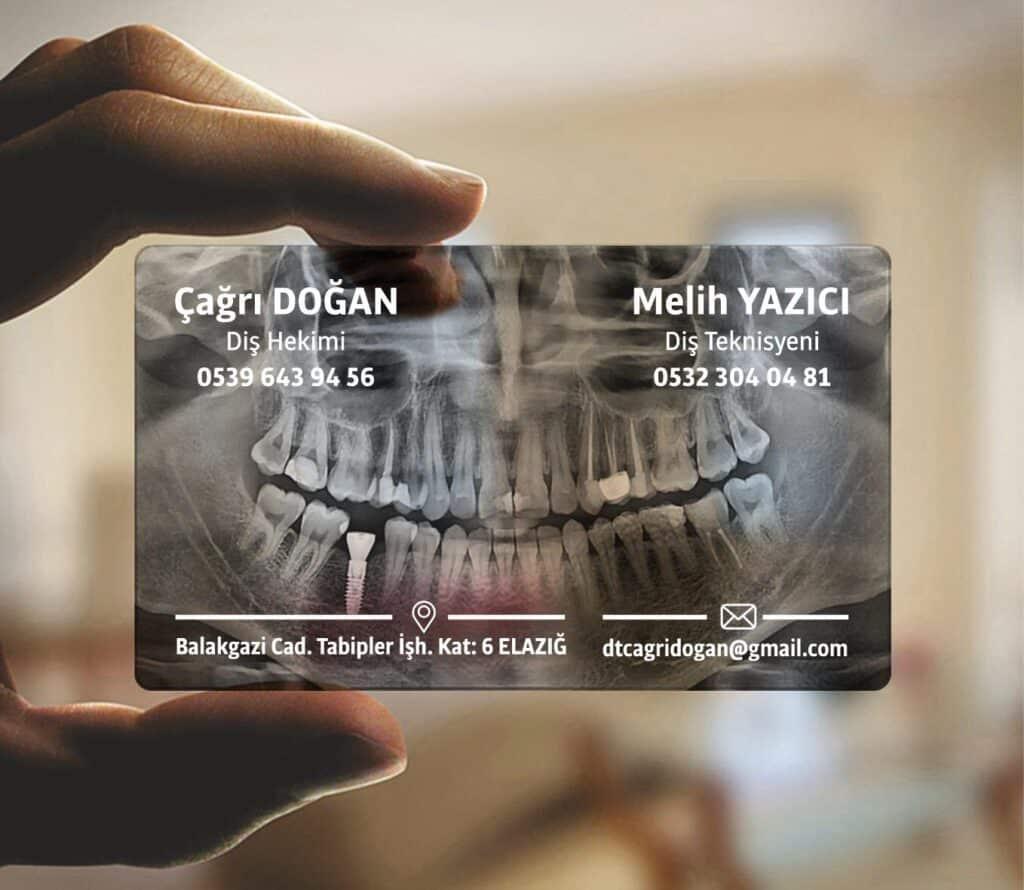 Diş Hekimi Şeffaf Kartvizit 1024x890 - Şeffaf Kartvizit